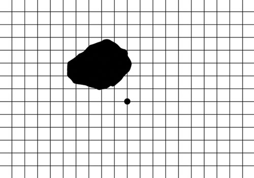 macula-grid